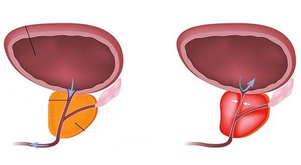 prostata belgilari)